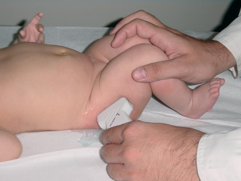 Υπερηχογράφημα ισχίων στα νεογνά. Μια απλή και ανώδυνη εξέταση με μεγάλη σημασία για το μωρό σας